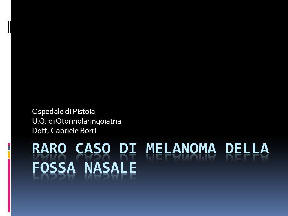 Ospedale di Pistoia U.O. di Otorinolaringoiatria Dott. Gabriele Borri