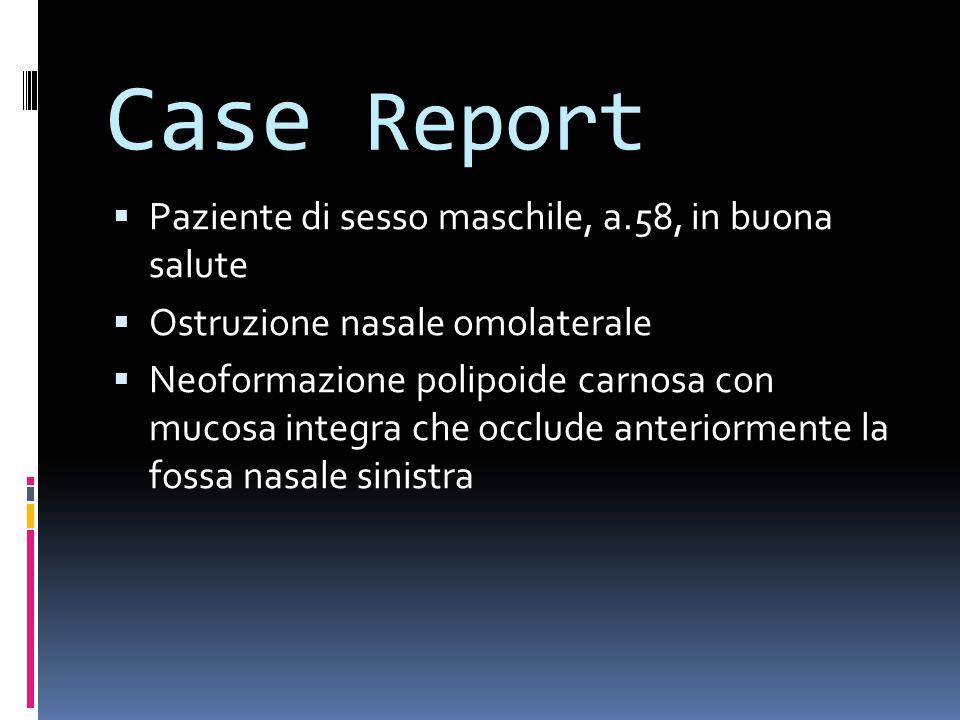 Case Report Paziente di sesso maschile, a.58, in buona salute Ostruzione nasale omolaterale Neoformazione polipoide carnosa con mucosa integra che occ