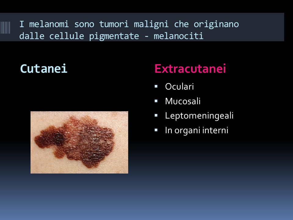 I melanomi sono tumori maligni che originano dalle cellule pigmentate - melanociti Cutanei Extracutanei Oculari Mucosali Leptomeningeali In organi int