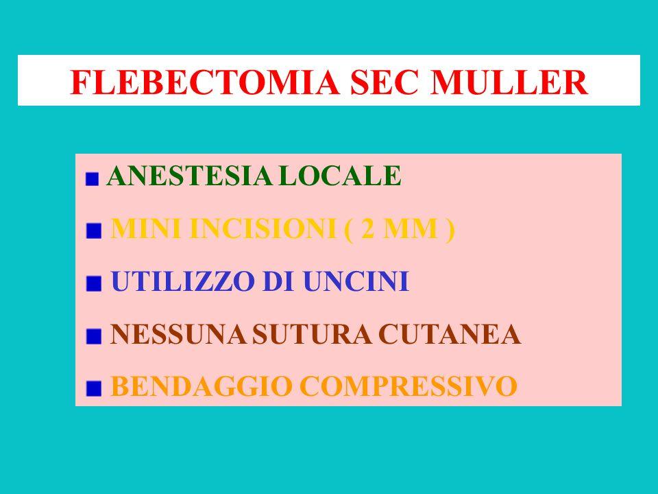 FLEBECTOMIA SEC MULLER ANESTESIA LOCALE MINI INCISIONI ( 2 MM ) UTILIZZO DI UNCINI NESSUNA SUTURA CUTANEA BENDAGGIO COMPRESSIVO