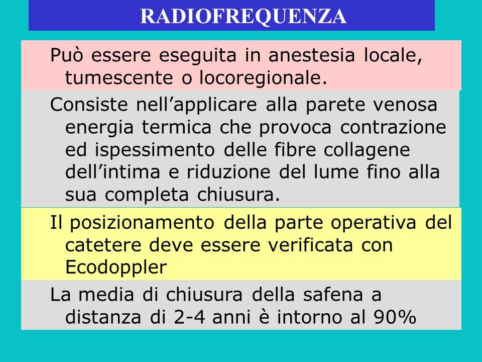 RADIOFREQUENZA Può essere eseguita in anestesia locale, tumescente o locoregionale. Consiste nellapplicare alla parete venosa energia termica che prov