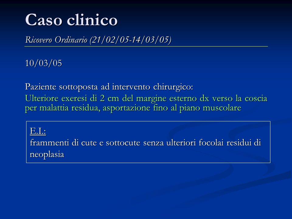 Caso clinico Ricovero Ordinario (28/04/05-13/05/05) 02/05/05: Nodulo sottocutaneo inguinale dx Paziente sottoposta ad intervento chirurgico: I tempo) incisione obliqua inguinale dx e asportazione di nodulo sottocutaneo con riscontro di coinvolgimento della vena femorale comune.
