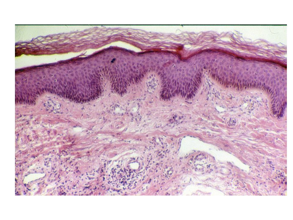 Cresta epidermica In questa figura è possibile evidenziare le CRESTE EPIDERMICHE e le PAPILLE DERMICHE.