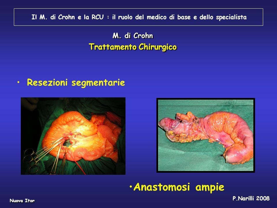 Resezioni segmentarie Il M. di Crohn e la RCU : il ruolo del medico di base e dello specialista M. di Crohn Trattamento Chirurgico Anastomosi ampie P.
