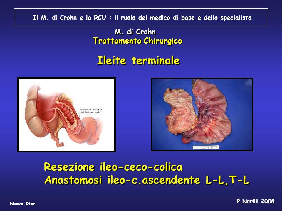 Il M. di Crohn e la RCU : il ruolo del medico di base e dello specialista Nuova Itor P.Narilli 2008 Ileite terminale Resezione ileo-ceco-colica Anasto