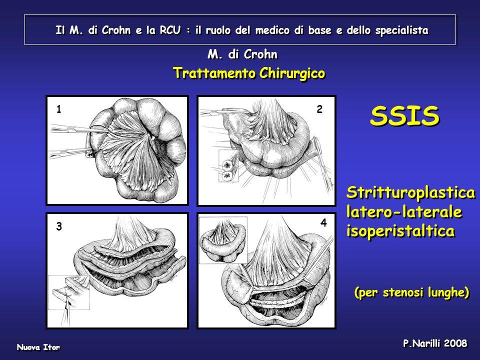 Il M. di Crohn e la RCU : il ruolo del medico di base e dello specialista Nuova Itor P.Narilli 2008 12 3 4 M. di Crohn SSIS Stritturoplastica latero-l