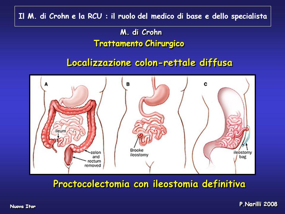 Il M. di Crohn e la RCU : il ruolo del medico di base e dello specialista Nuova Itor P.Narilli 2008 M. di Crohn Proctocolectomia con ileostomia defini