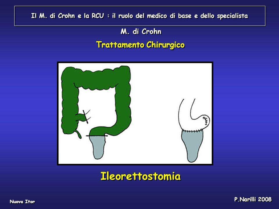 Il M. di Crohn e la RCU : il ruolo del medico di base e dello specialista Nuova Itor P.Narilli 2008 M. di Crohn Ileorettostomia Trattamento Chirurgico