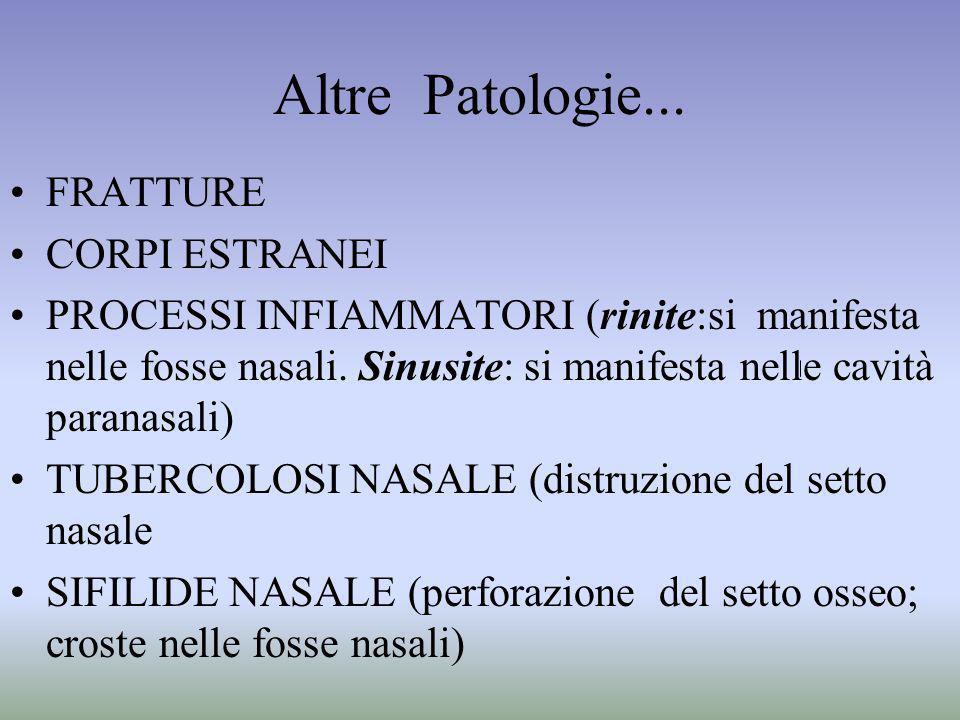 Altre Patologie... FRATTURE CORPI ESTRANEI PROCESSI INFIAMMATORI (rinite:si manifesta nelle fosse nasali. Sinusite: si manifesta nelle cavità paranasa