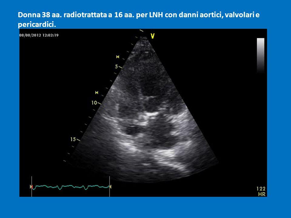 Donna 38 aa. radiotrattata a 16 aa. per LNH con danni aortici, valvolari e pericardici.
