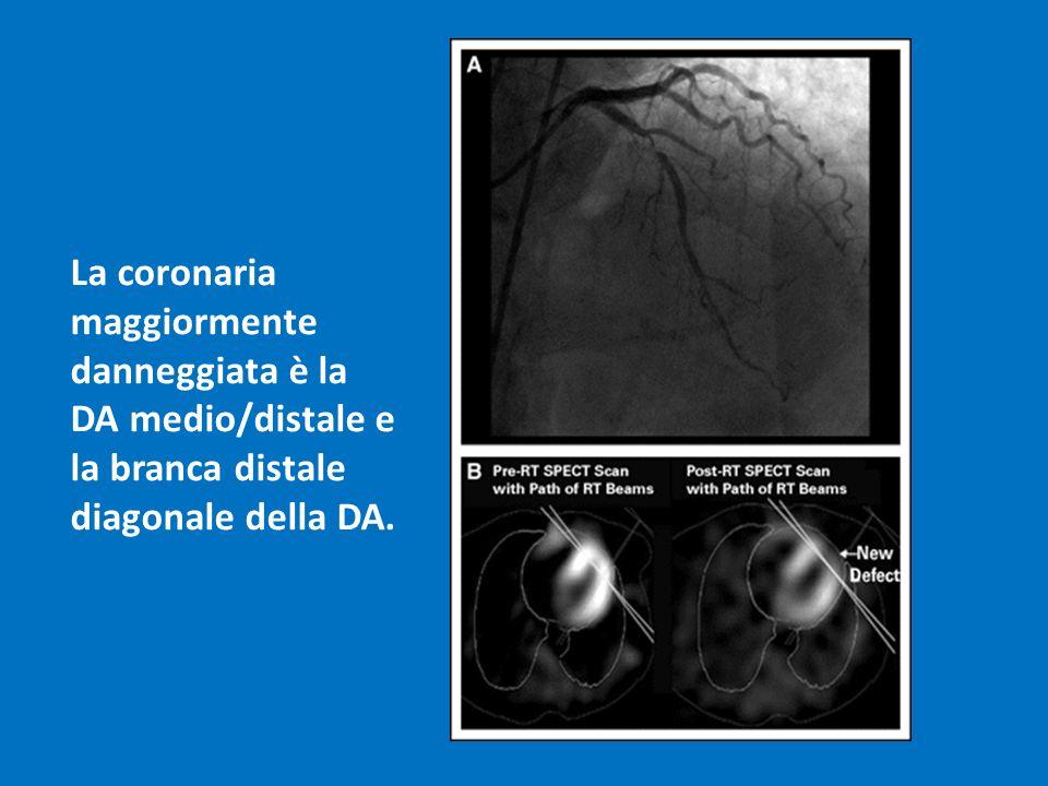 La coronaria maggiormente danneggiata è la DA medio/distale e la branca distale diagonale della DA.