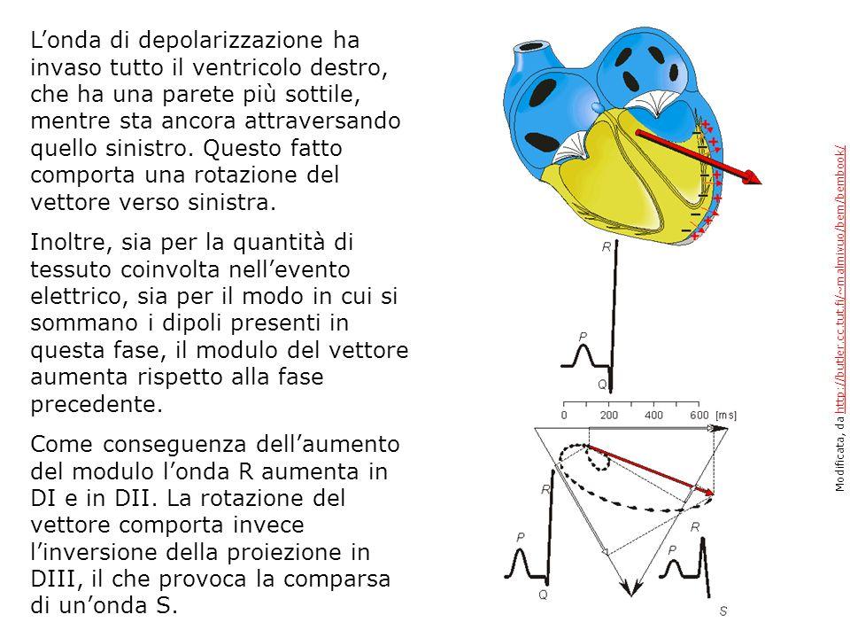Londa di depolarizzazione ha invaso tutto il ventricolo destro, che ha una parete più sottile, mentre sta ancora attraversando quello sinistro. Questo