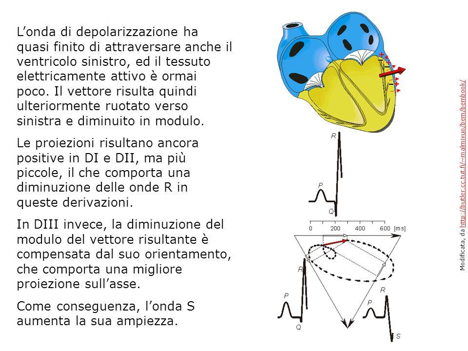 Londa di depolarizzazione ha quasi finito di attraversare anche il ventricolo sinistro, ed il tessuto elettricamente attivo è ormai poco. Il vettore r