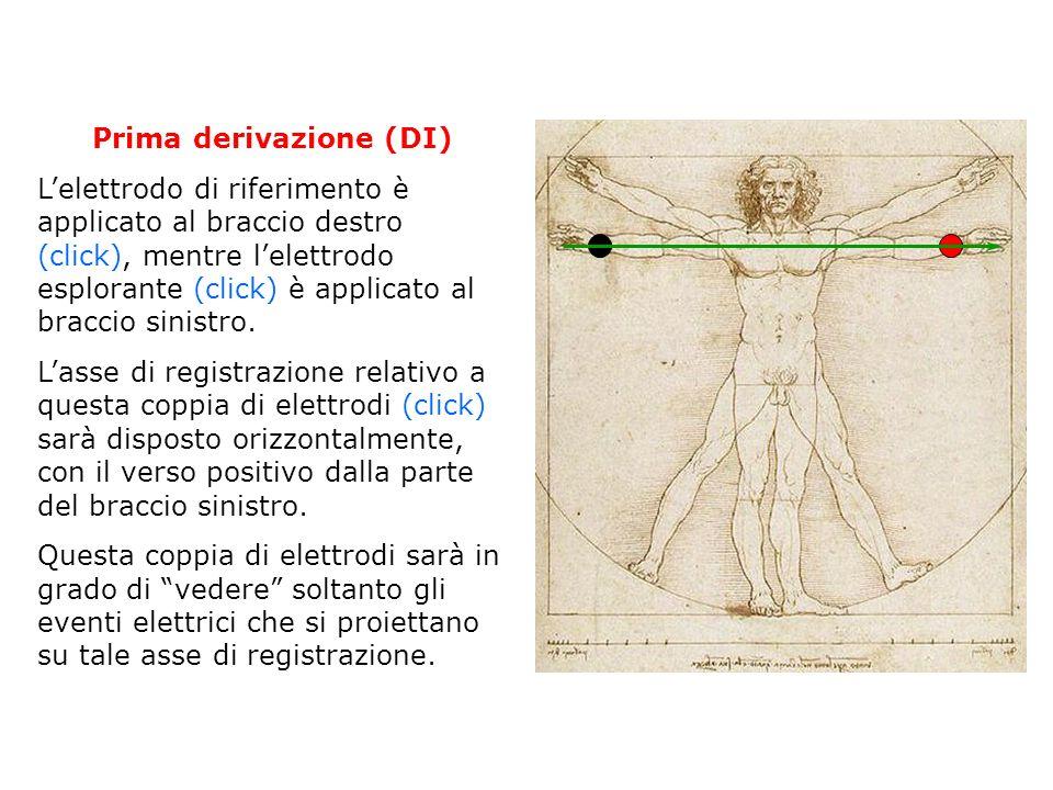 Seconda derivazione (DII) Lelettrodo di riferimento è applicato al braccio destro (click), mentre lelettrodo esplorante (click) è applicato alla gamba sinistra.