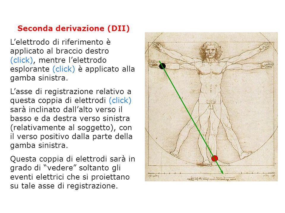 Terza derivazione (DIII) Lelettrodo di riferimento è applicato al braccio sinistro (click), mentre lelettrodo esplorante (click) è applicato alla gamba sinistra.
