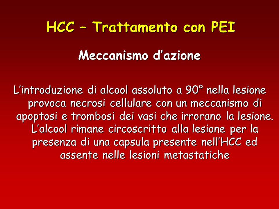 HCC – Trattamento con PEI Meccanismo dazione Lintroduzione di alcool assoluto a 90° nella lesione provoca necrosi cellulare con un meccanismo di apopt