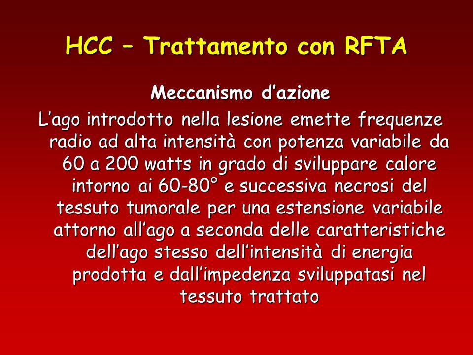 HCC – Trattamento con RFTA Meccanismo dazione Lago introdotto nella lesione emette frequenze radio ad alta intensità con potenza variabile da 60 a 200