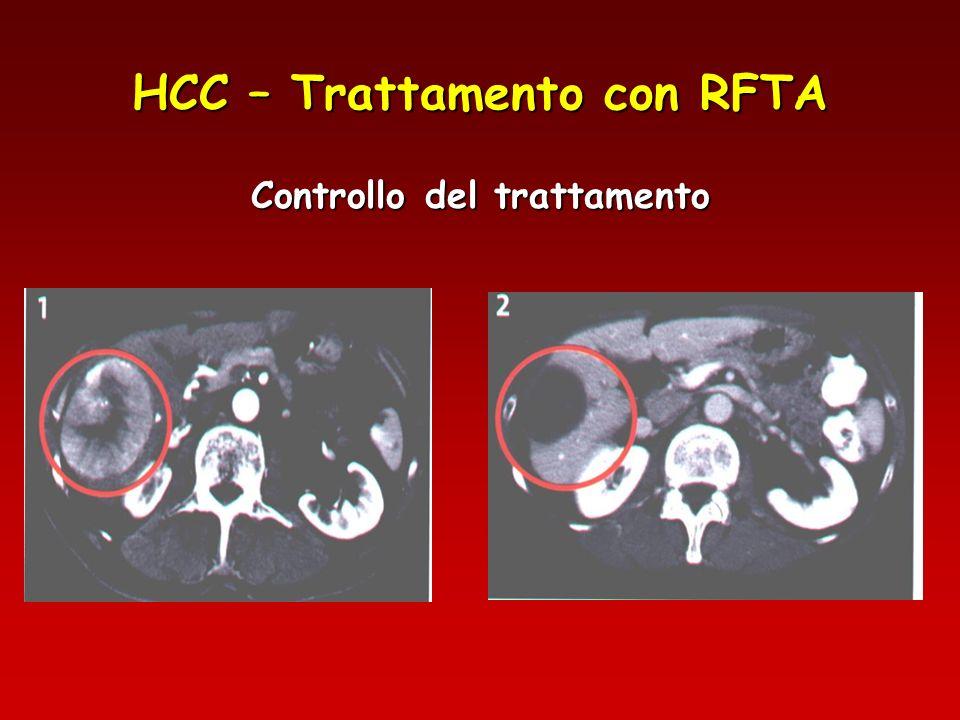 HCC – Trattamento con RFTA Controllo del trattamento