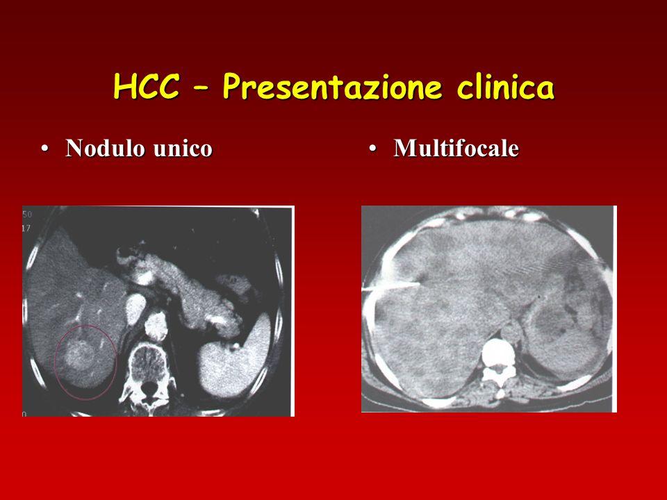 HCC – Presentazione clinica Le tecniche in nostro possesso per la diagnosi di HCC Ecografia Ecodoppler – Ecodoppler con mdc ultrasonico Biopsia ecoguidata TC spirale con mdc RNM con mdc Arteriografia Importanza dei Markers: YGT alfa feto prot.