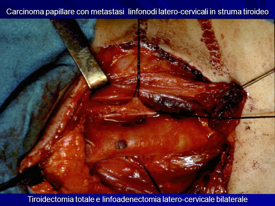 Carcinoma papillare con metastasi linfonodi latero-cervicali in struma tiroideo Tiroidectomia totale e linfoadenectomia latero-cervicale bilaterale