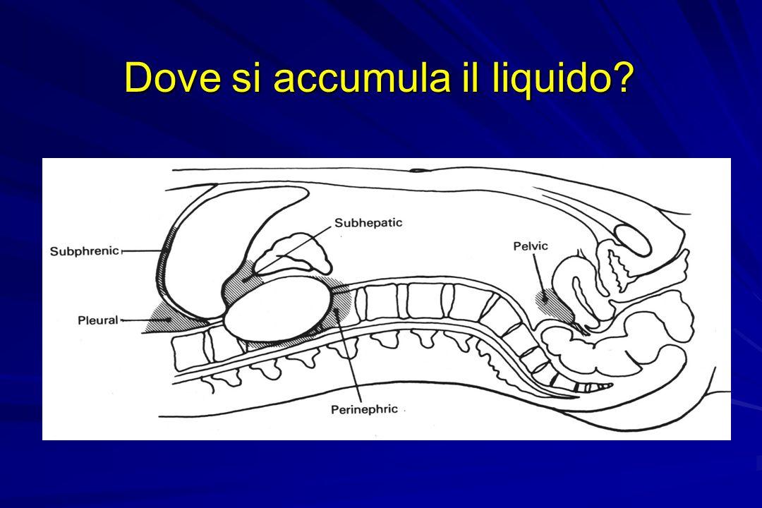 Dove si accumula il liquido?