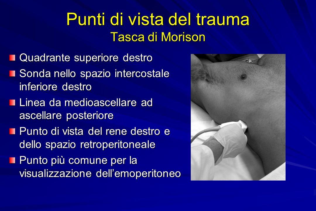 Punti di vista del trauma Tasca di Morison Quadrante superiore destro Sonda nello spazio intercostale inferiore destro Linea da medioascellare ad asce