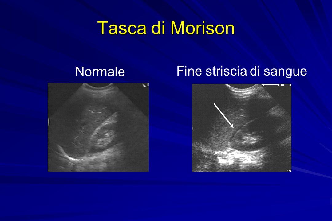 Tasca di Morison Normale Fine striscia di sangue