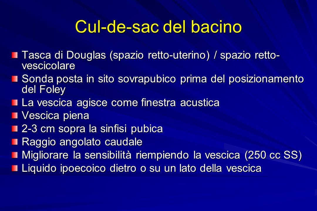 Cul-de-sac del bacino Tasca di Douglas (spazio retto-uterino) / spazio retto- vescicolare Sonda posta in sito sovrapubico prima del posizionamento del