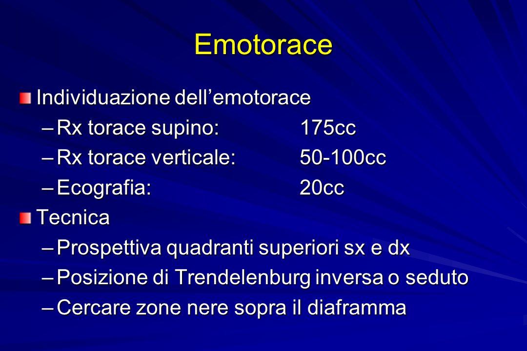 Emotorace Individuazione dellemotorace –Rx torace supino: 175cc –Rx torace verticale: 50-100cc –Ecografia: 20cc Tecnica –Prospettiva quadranti superio