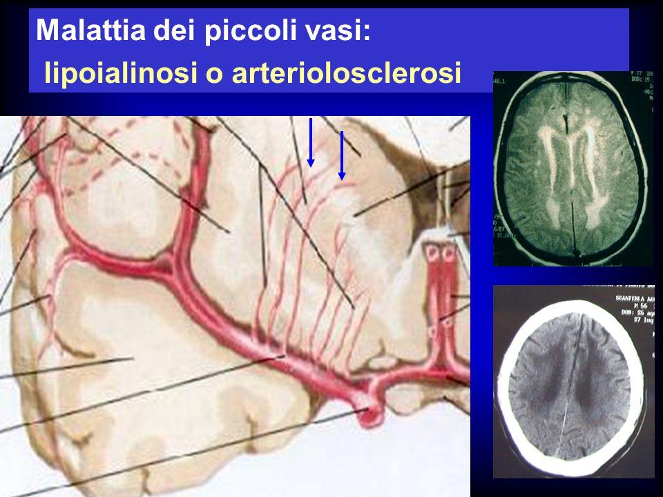 Malattia dei piccoli vasi: lipoialinosi o arteriolosclerosi