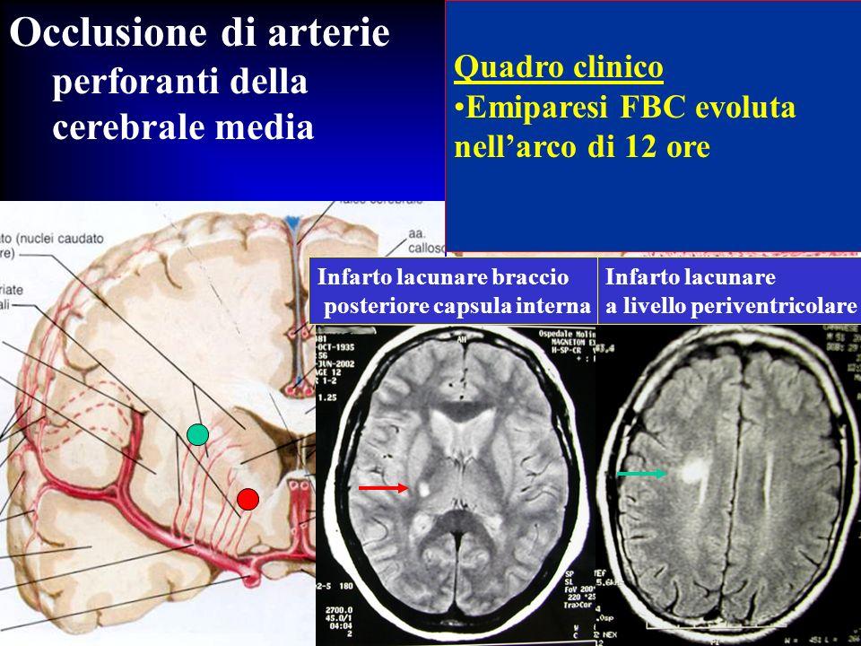 Occlusione di arterie perforanti della cerebrale media Quadro clinico Emiparesi FBC evoluta nellarco di 12 ore Infarto lacunare braccio posteriore cap