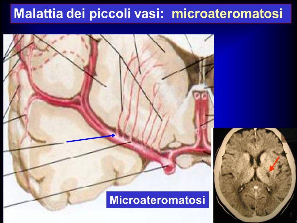 Microateromatosi Malattia dei piccoli vasi: microateromatosi