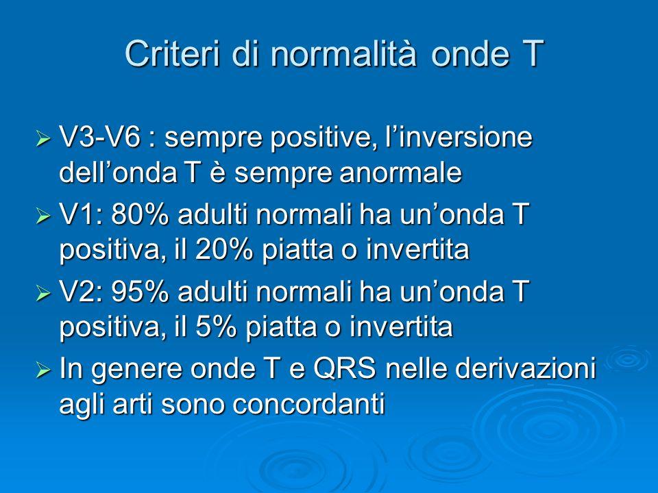 Criteri di normalità onde T V3-V6 : sempre positive, linversione dellonda T è sempre anormale V3-V6 : sempre positive, linversione dellonda T è sempre