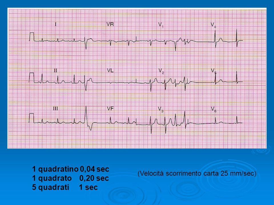 1 quadratino 0,04 sec 1 quadrato 0,20 sec 5 quadrati 1 sec (Velocità scorrimento carta 25 mm/sec)