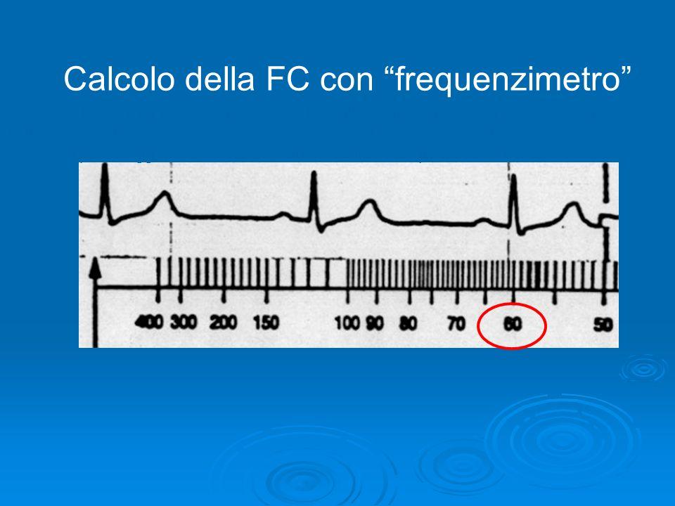 La frequenza cardiaca c) il metodo più rapido è rappresentato dallutilizzo di un frequenzimetro. Posizionando la linea di riferimento su di un comples