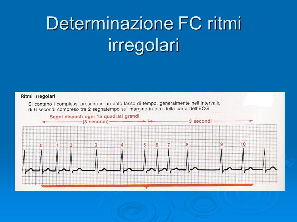 Determinazione FC ritmi irregolari