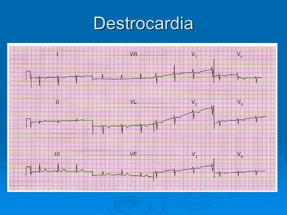 Destrocardia