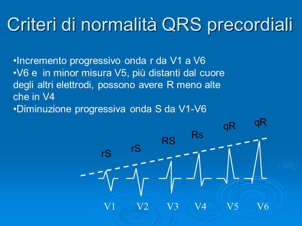 V1V2V3V4V5V6 Criteri di normalità QRS precordiali rS RS Rs qR Incremento progressivo onda r da V1 a V6 V6 e in minor misura V5, più distanti dal cuore degli altri elettrodi, possono avere R meno alte che in V4 Diminuzione progressiva onda S da V1-V6