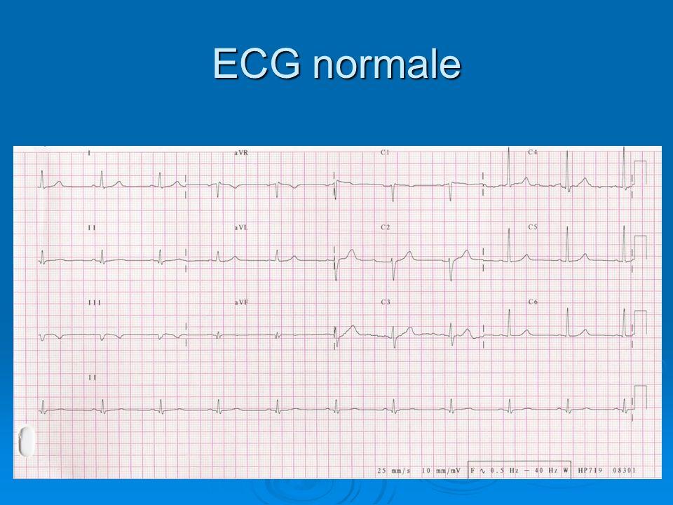 ECG normale