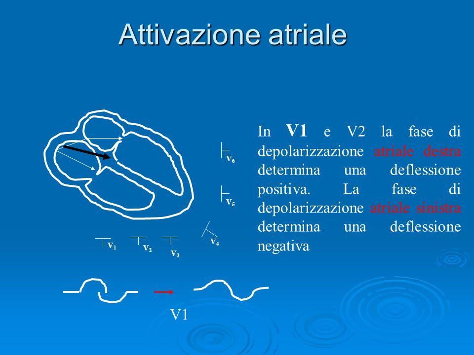 Attivazione atriale V6V6 V5V5 V4V4 V3V3 V1V1 V2V2 V1 In V1 e V2 la fase di depolarizzazione atriale destra determina una deflessione positiva. La fase