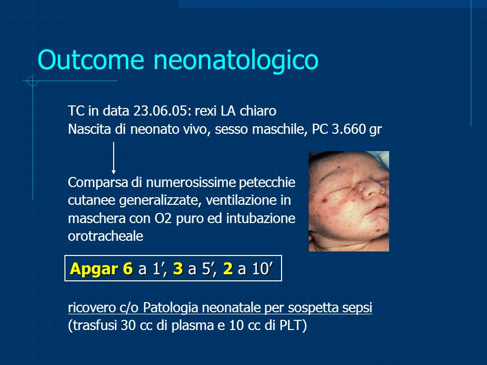 Outcome neonatologico TC in data 23.06.05: rexi LA chiaro Nascita di neonato vivo, sesso maschile, PC 3.660 gr Comparsa di numerosissime petecchie cut