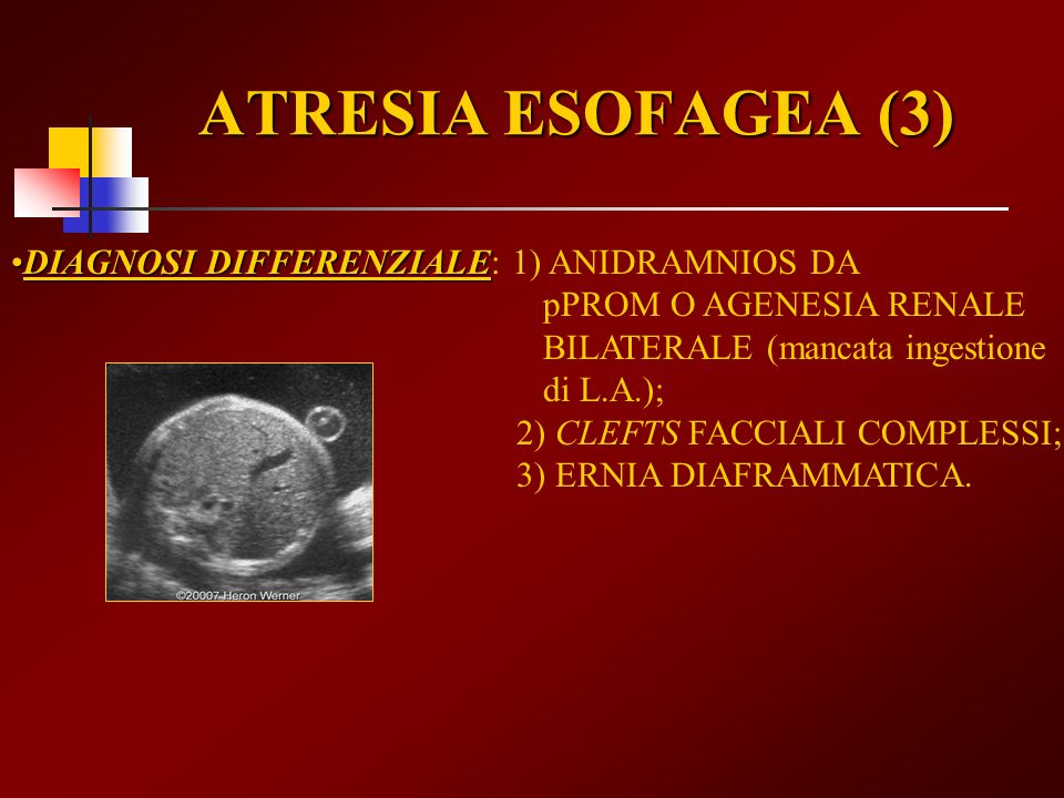 ATRESIA ESOFAGEA (3) DIAGNOSI DIFFERENZIALEDIAGNOSI DIFFERENZIALE: 1) ANIDRAMNIOS DA pPROM O AGENESIA RENALE BILATERALE (mancata ingestione di L.A.);