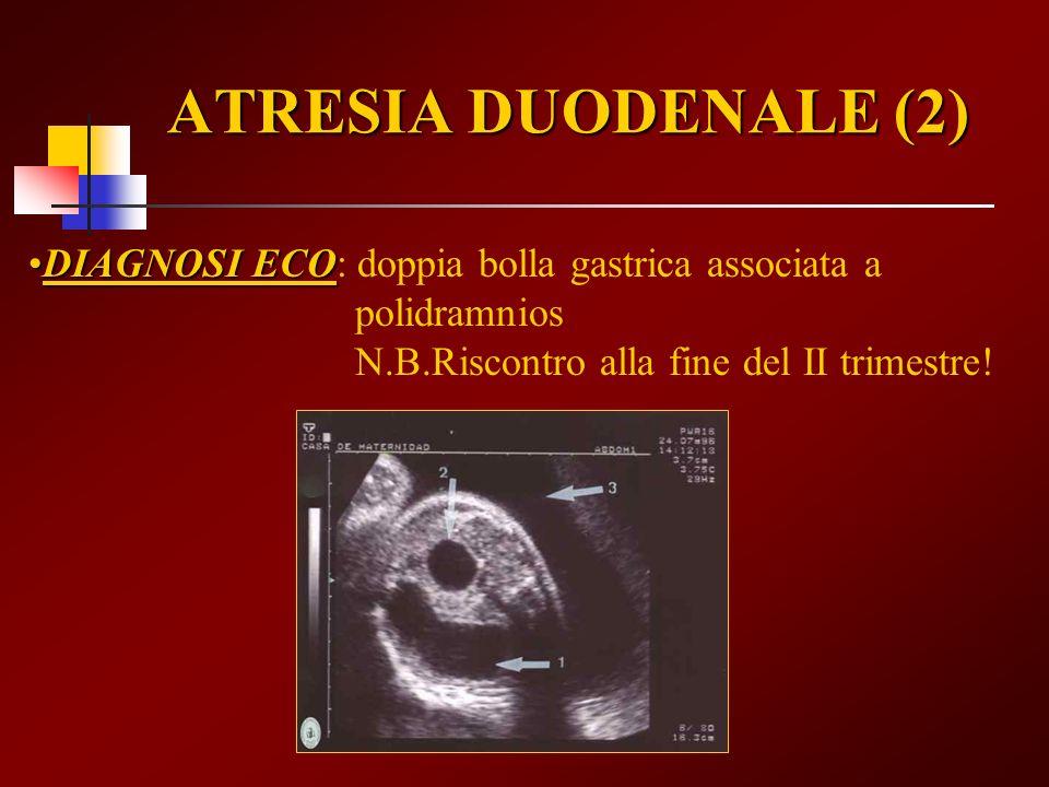 ATRESIA DUODENALE (2) DIAGNOSI ECODIAGNOSI ECO: doppia bolla gastrica associata a polidramnios N.B.Riscontro alla fine del II trimestre!