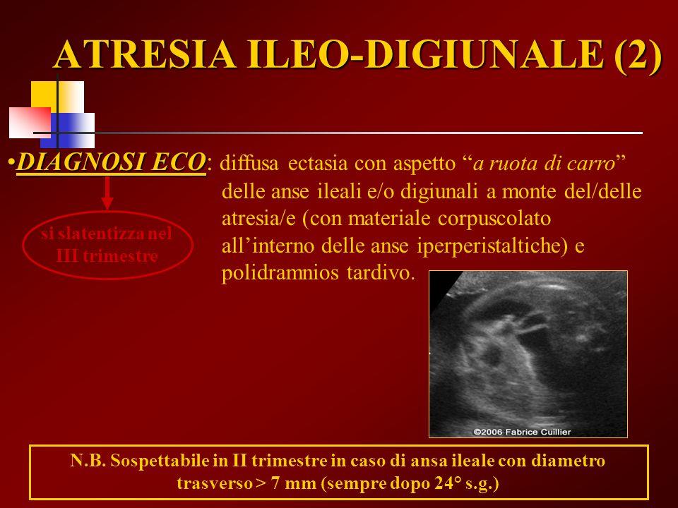 ATRESIA ILEO-DIGIUNALE (2) DIAGNOSI ECODIAGNOSI ECO: diffusa ectasia con aspetto a ruota di carro delle anse ileali e/o digiunali a monte del/delle at
