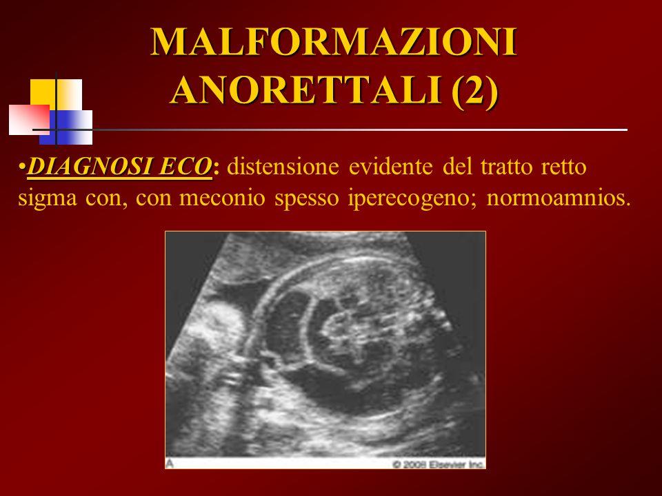MALFORMAZIONI ANORETTALI (2) DIAGNOSI ECODIAGNOSI ECO: distensione evidente del tratto retto sigma con, con meconio spesso iperecogeno; normoamnios.