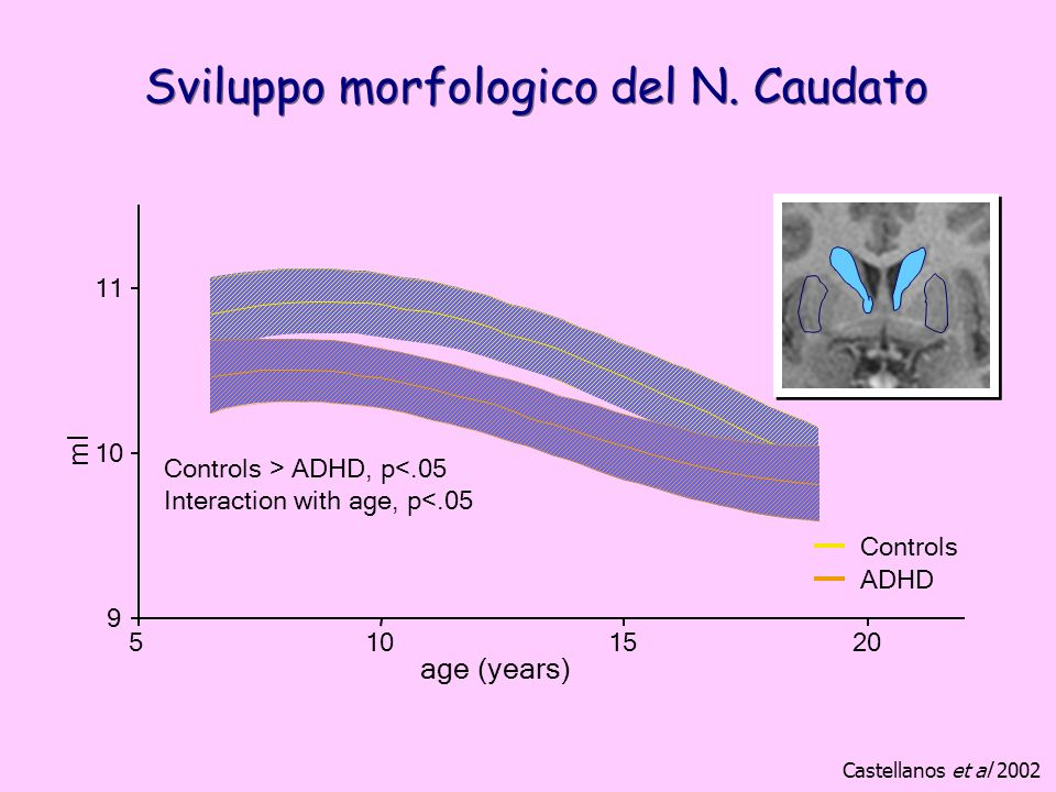 Sviluppo morfologico del N. Caudato Controls > ADHD, p<.05 Interaction with age, p<.05 9 10 11 5101520 age (years) ml Controls ADHD Castellanos et al