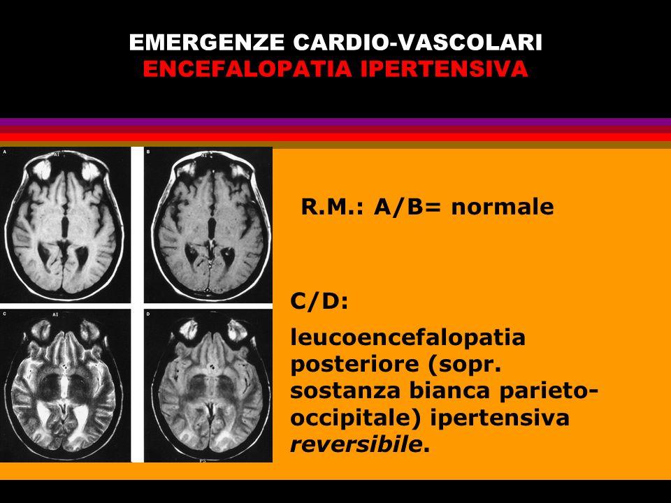 EMERGENZE CARDIO-VASCOLARI ENCEFALOPATIA IPERTENSIVA R.M.:A/B= normale C/D: leucoencefalopatia posteriore (sopr. sostanza bianca parieto- occipitale)