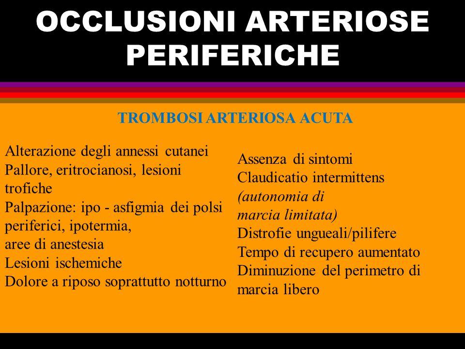 OCCLUSIONI ARTERIOSE PERIFERICHE TROMBOSI ARTERIOSA ACUTA Alterazione degli annessi cutanei Pallore, eritrocianosi, lesioni trofiche Palpazione: ipo -