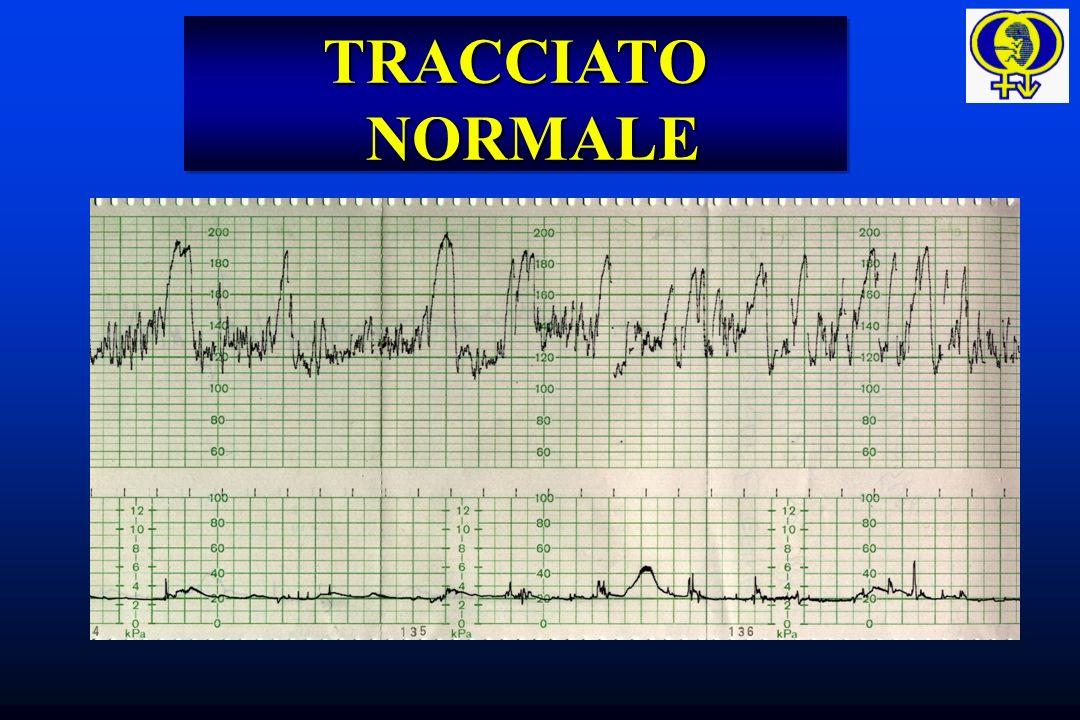 Risposta cardiovascolare fetale durante NO clamp.