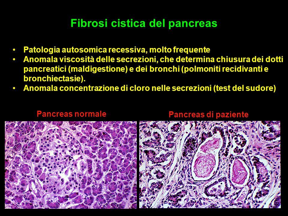 Fibrosi cistica del pancreas Patologia autosomica recessiva, molto frequente Anomala viscosità delle secrezioni, che determina chiusura dei dotti pancreatici (maldigestione) e dei bronchi (polmoniti recidivanti e bronchiectasie).